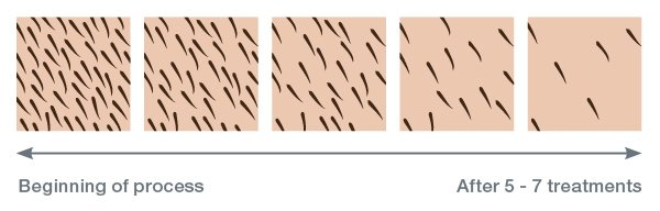Hair Removal - IPL STUDIO