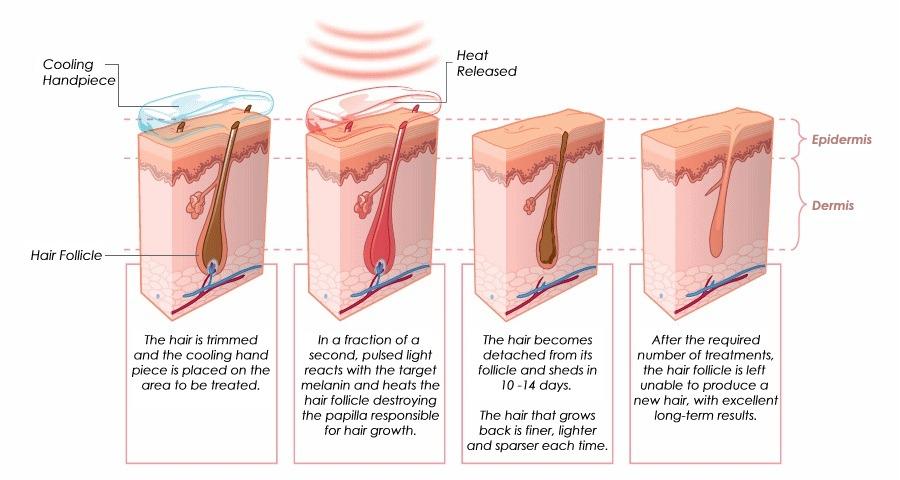 Kuuloimplantti